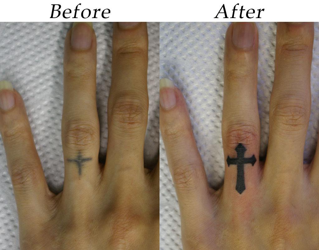 指の十字架のカバーアップ